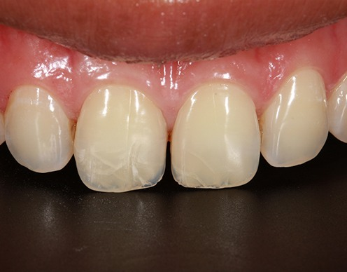 Smile with cracked teeth before cosmetic dental bonding