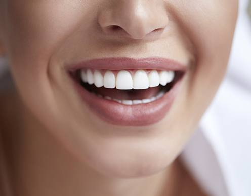 Closeup of smile after gum grafting treatment