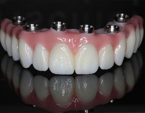 Model Prettau dental bridge restoration